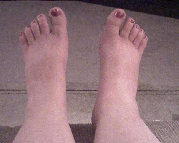 the author's feet in the evening - swollen with baseball-size ankles