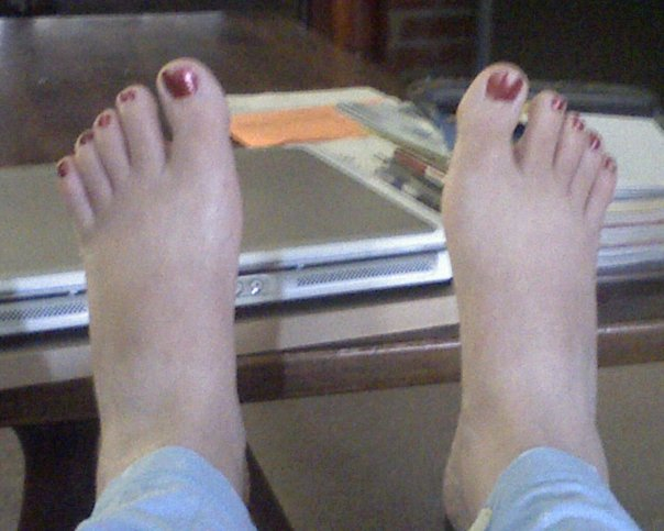 the author's feet in the morning - thin with bony ankles