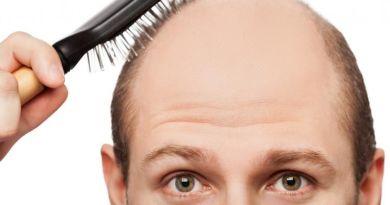 Untuk Mengatasi Rambut Sebelum Botak Lakukan 7 Hal Ini