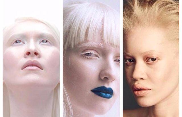 Kenalan dengan 3 Model Albino Beda Ras, Salah Satunya Albino Tercantik di Dunia