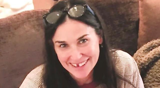 Demi Moore Kehilangan Gigi nya Gara Gara Stres