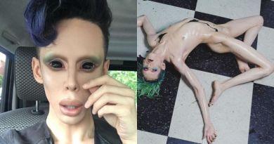 Pria Ini Nekat Jalani 110 Kali Operasi Karena Ingin Jadi Alien Tanpa Kelamin