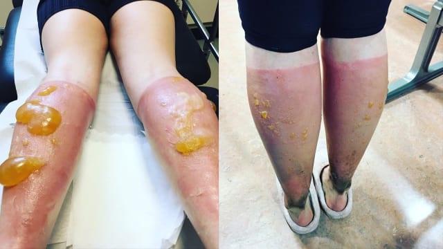 Akibat Terlambat Pakai Sunscreen, Betis Wanita Ini Jadi Seperti ini