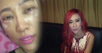 Bikin Ngilu Dewi Sanca Operasi Matanya Biar Terlihat Lebih Cantik