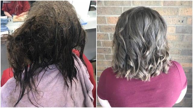 Perubahan Rambut Gadis 16 Tahun yang Alami Depresi