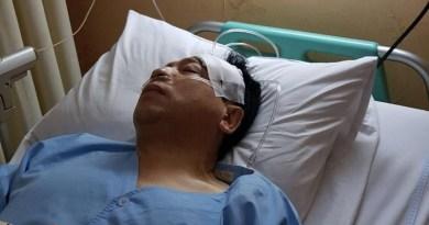 Setya Novanto Kecelakaan, Tiang Listrik dan Fortuner Jadi Korban