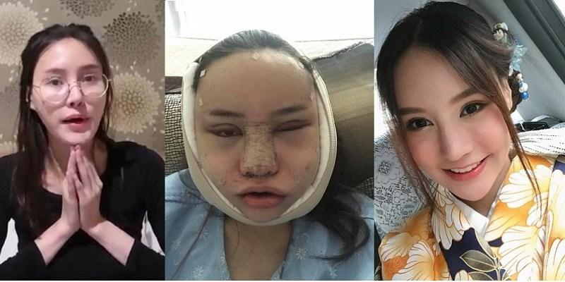 Seorang Gadis Thailand Bagi Foto Transformasi Wajahnya jadi Cantik