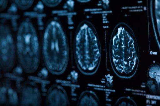 ANEU 2020 Emergenze e Urgenze: la Prospettiva Neurologica
