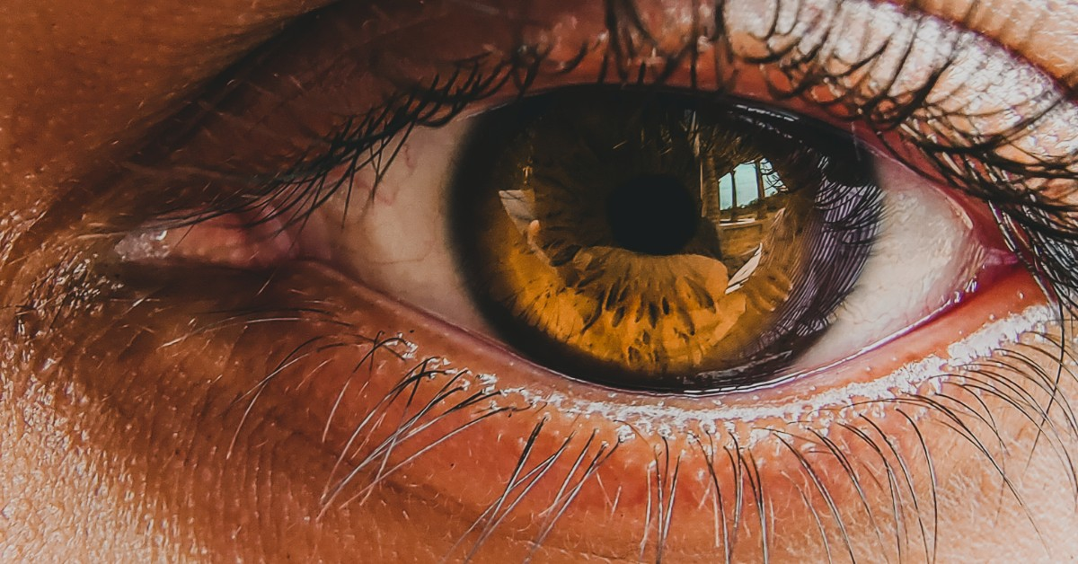 The close up of a human eye with a yellow tinted eyeball