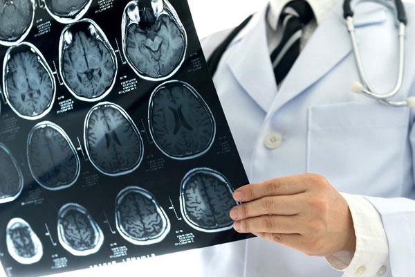 Como a ressonância magnética ajuda no diagnóstico de doenças