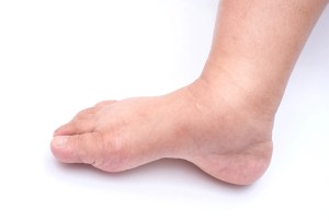 edema and lymphedema in leg