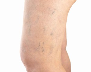 spider veins on legs