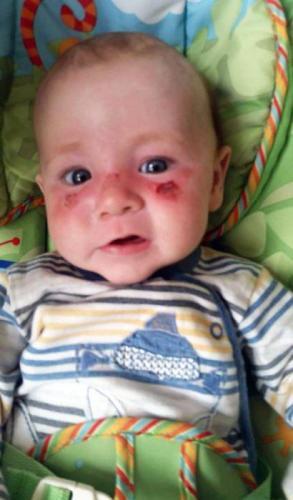 Ребенок обгорел на солнце: что делать, способы оказания помощи и рекомендации