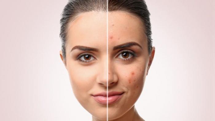 Уход за кожей: продукты, которые можно использовать, и те, которые нельзя