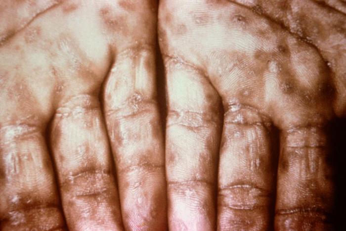 Как эти 10 болезней назывались раньше и почему?