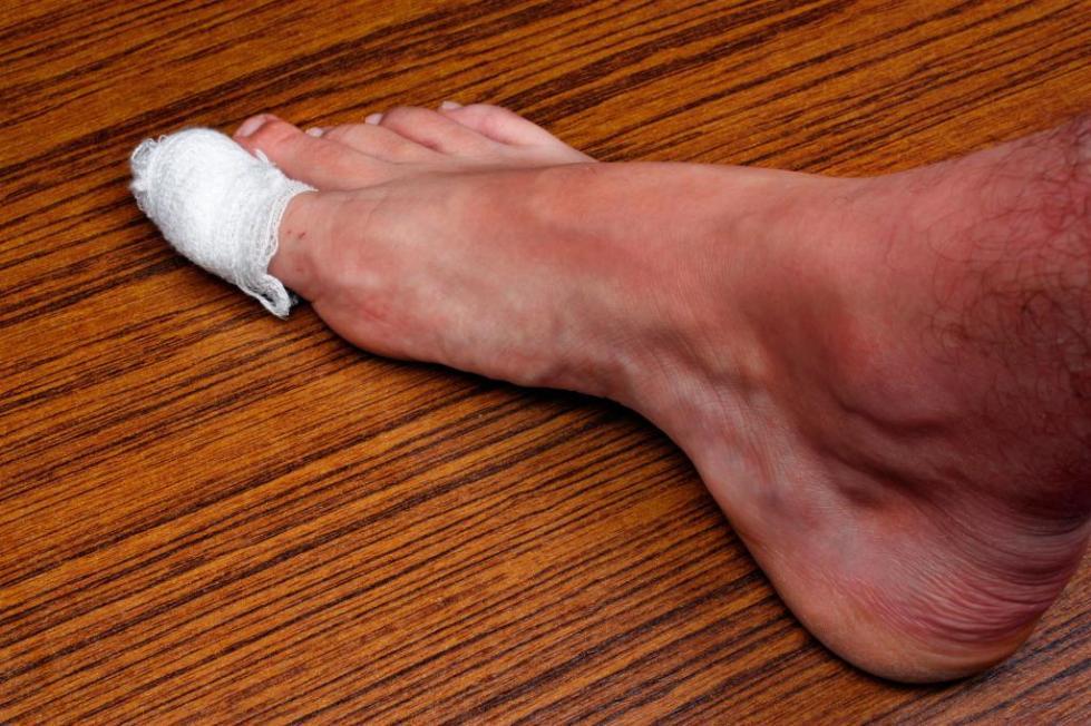 болит сустав большого пальца ноги что делать
