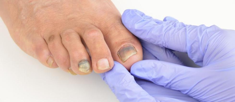 сустав большого пальца ноги болит шишка