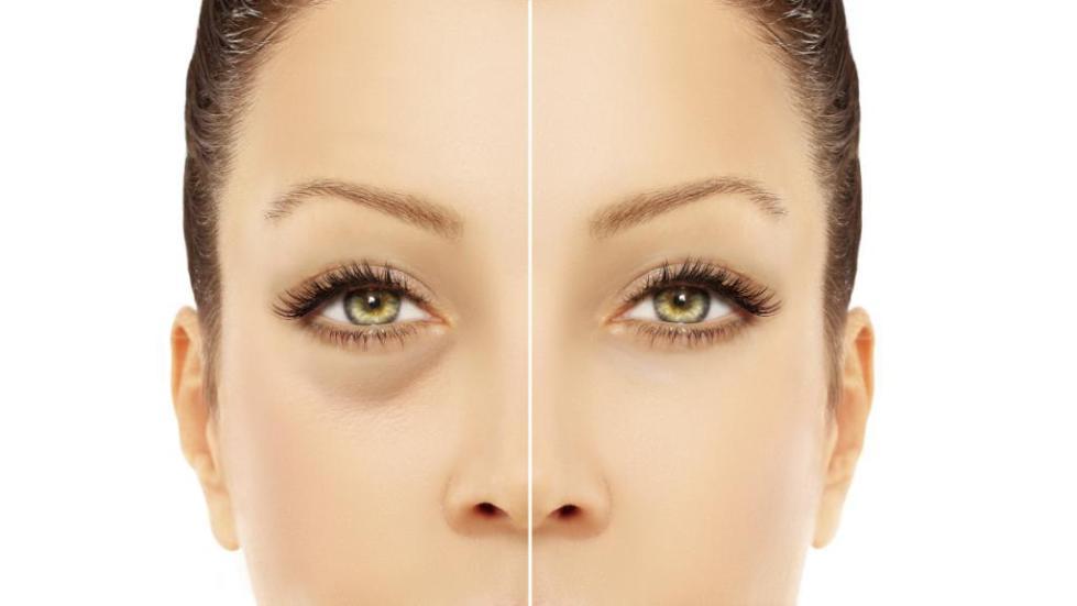 лицо до и после использования патчи