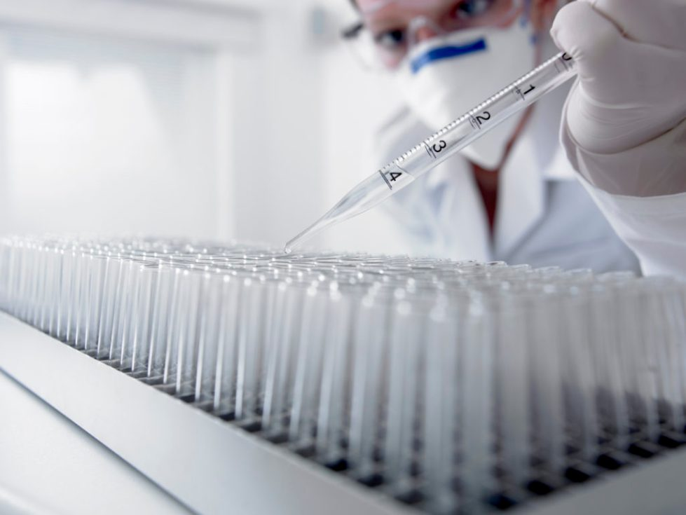 Сдать анализы на ВИЧ ПЦР