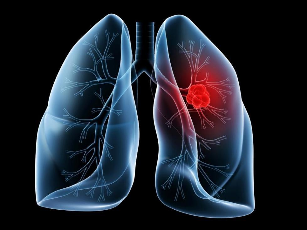 рак легкого клинические рекомендации