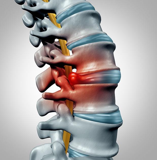 грыжи шейного отдела позвоночника симптомы лечение