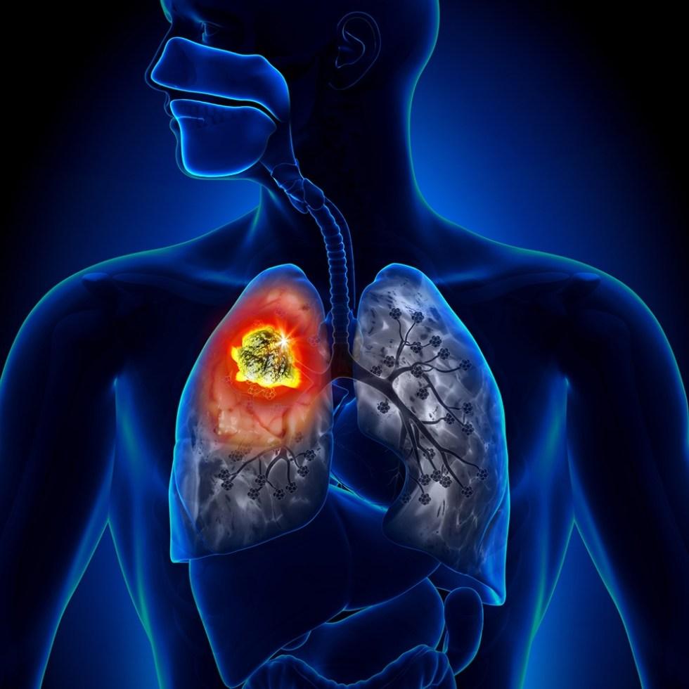 петрификаты в легких как лечить болезнь