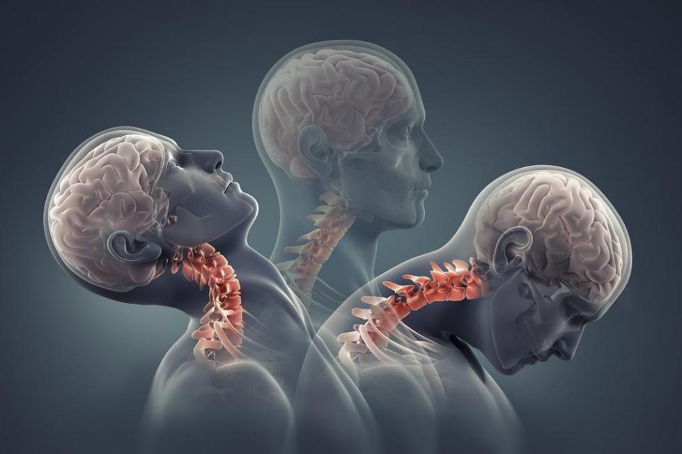 базилярная мигрень причины и лечение