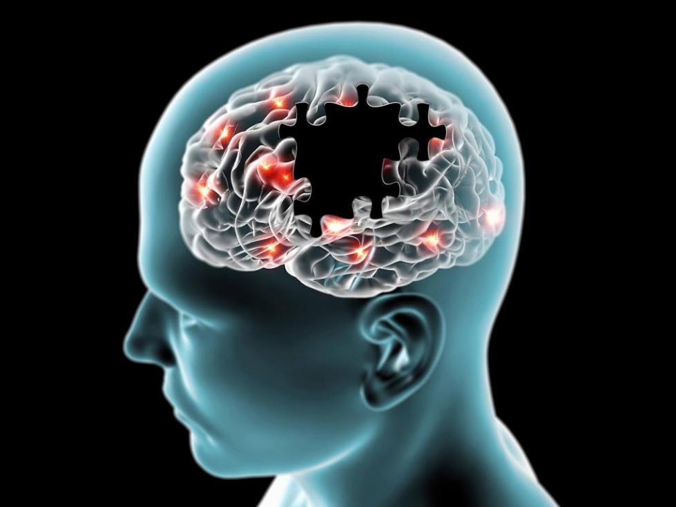диагностика болезни альцгеймера на ранних стадиях
