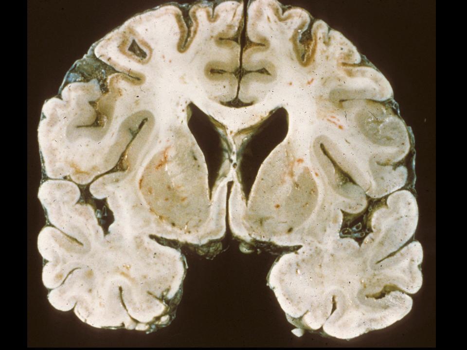 гипертонический криз энцефалопатия