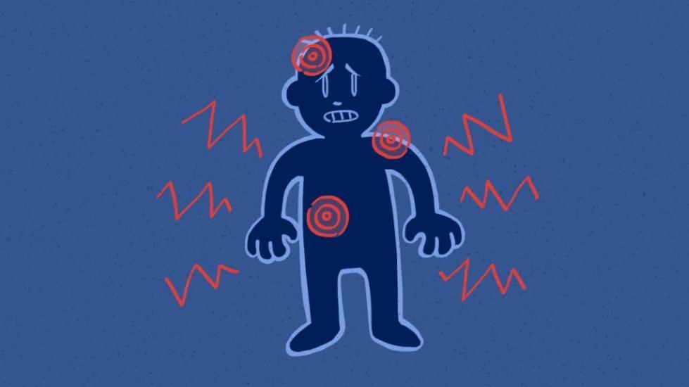 рецепторы болевой чувствительности