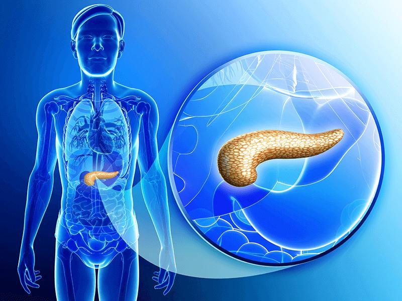 острый панкреатит патогенез