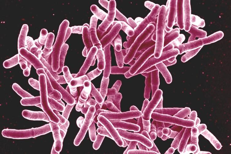 гост 26072 89 методы диагностики туберкулеза