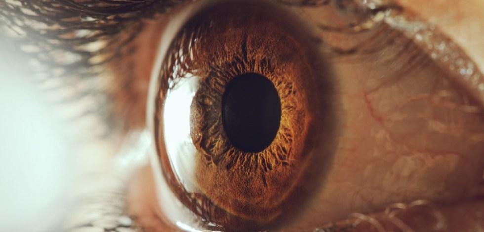 миопатия обоих глаз