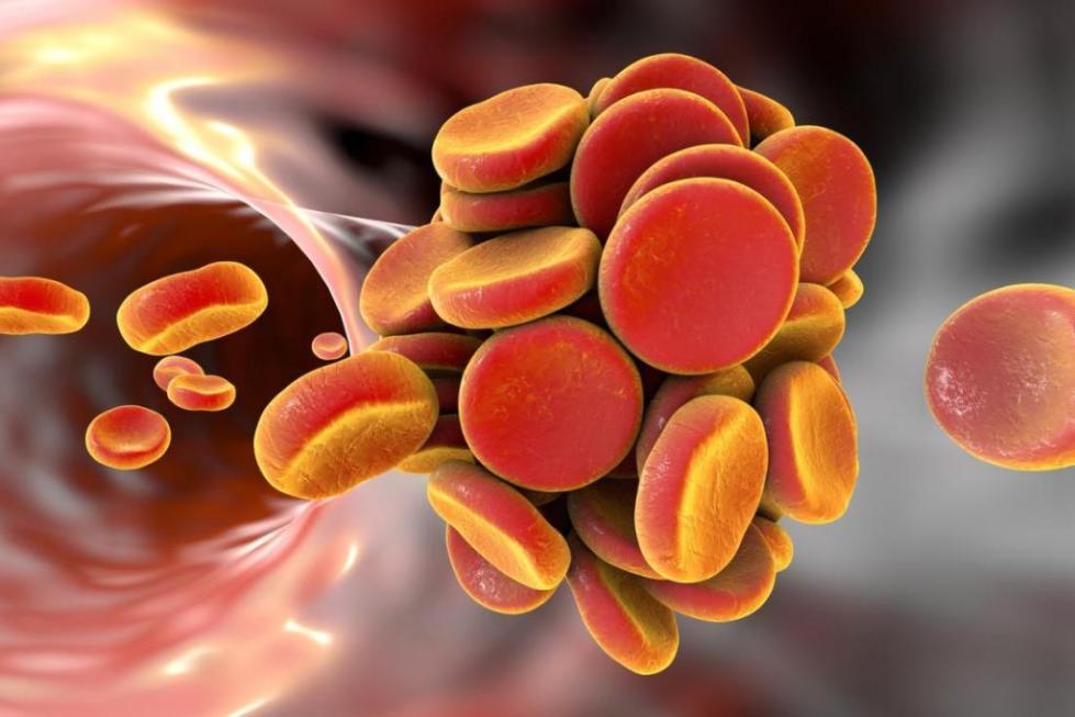 антитромботические препараты список эффективных