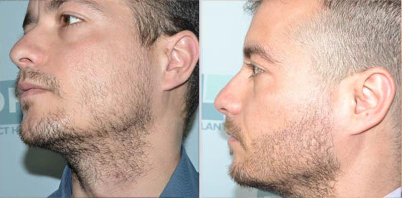Как проводится пересадка волос на бороду?