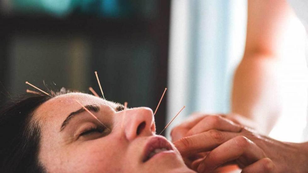 Иглотерапия при лицевом неврите