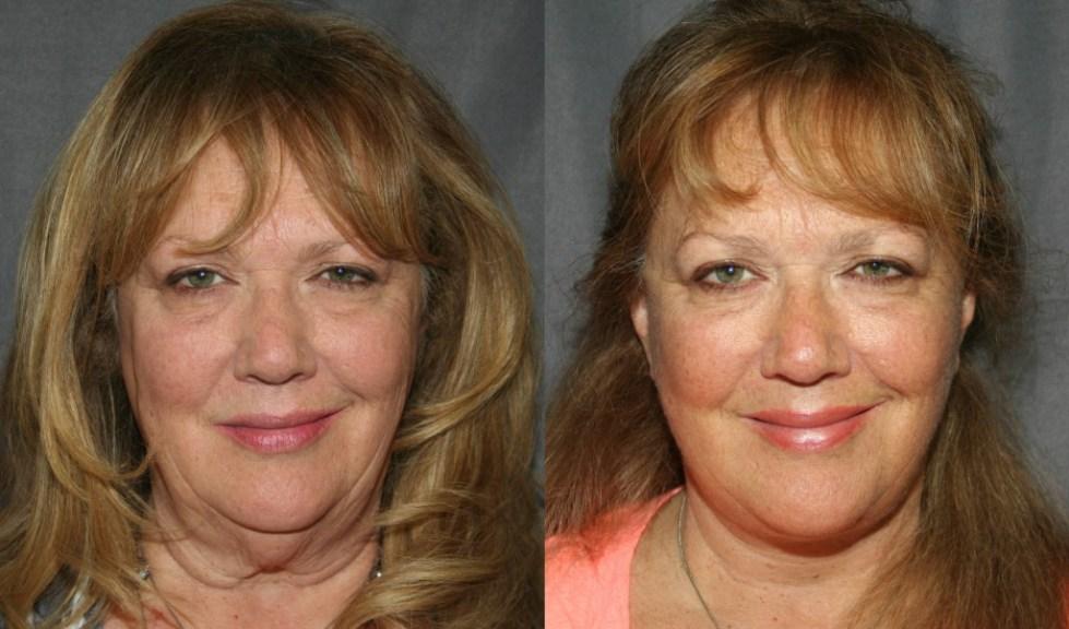 тейпирование лица фото до и после отзывы