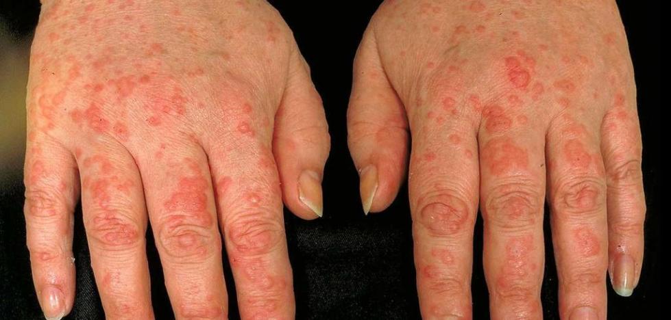 МКБ-10 аллергическая реакция по типу крапивницы