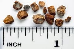 किडनी में लेकर घूम रहा था 420 पत्थर