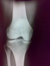 x-ray-gonato