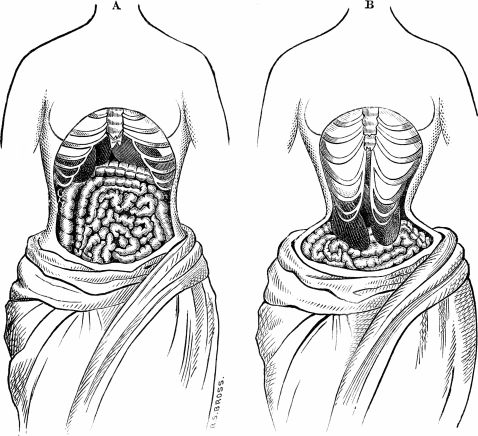The possible impact of Waist Trainers that are 21st century corsets,
