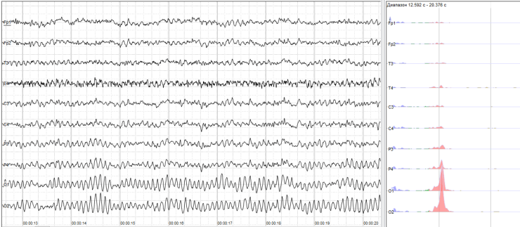 EEG for neural signature