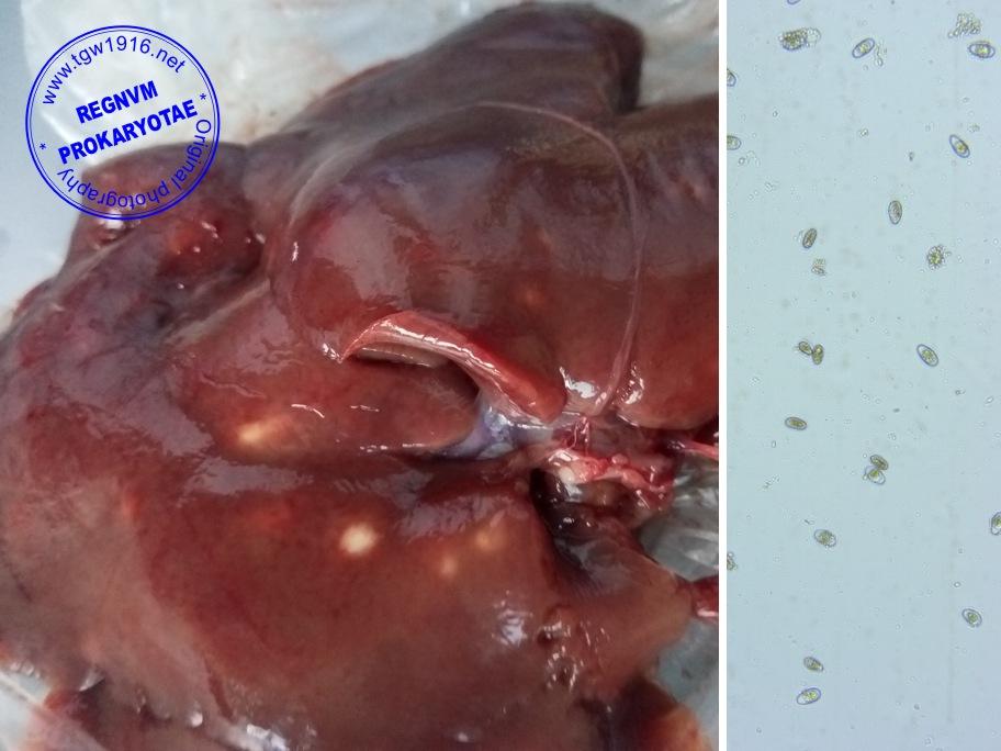 Infection Foot Aeruginosa Pseudomonas