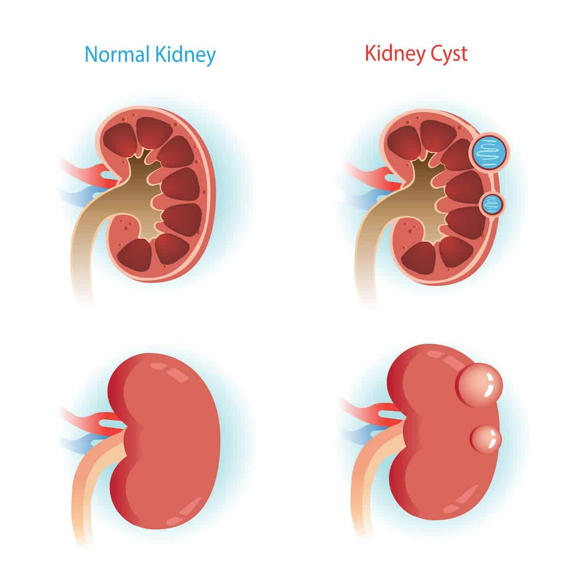 Kidney cyst
