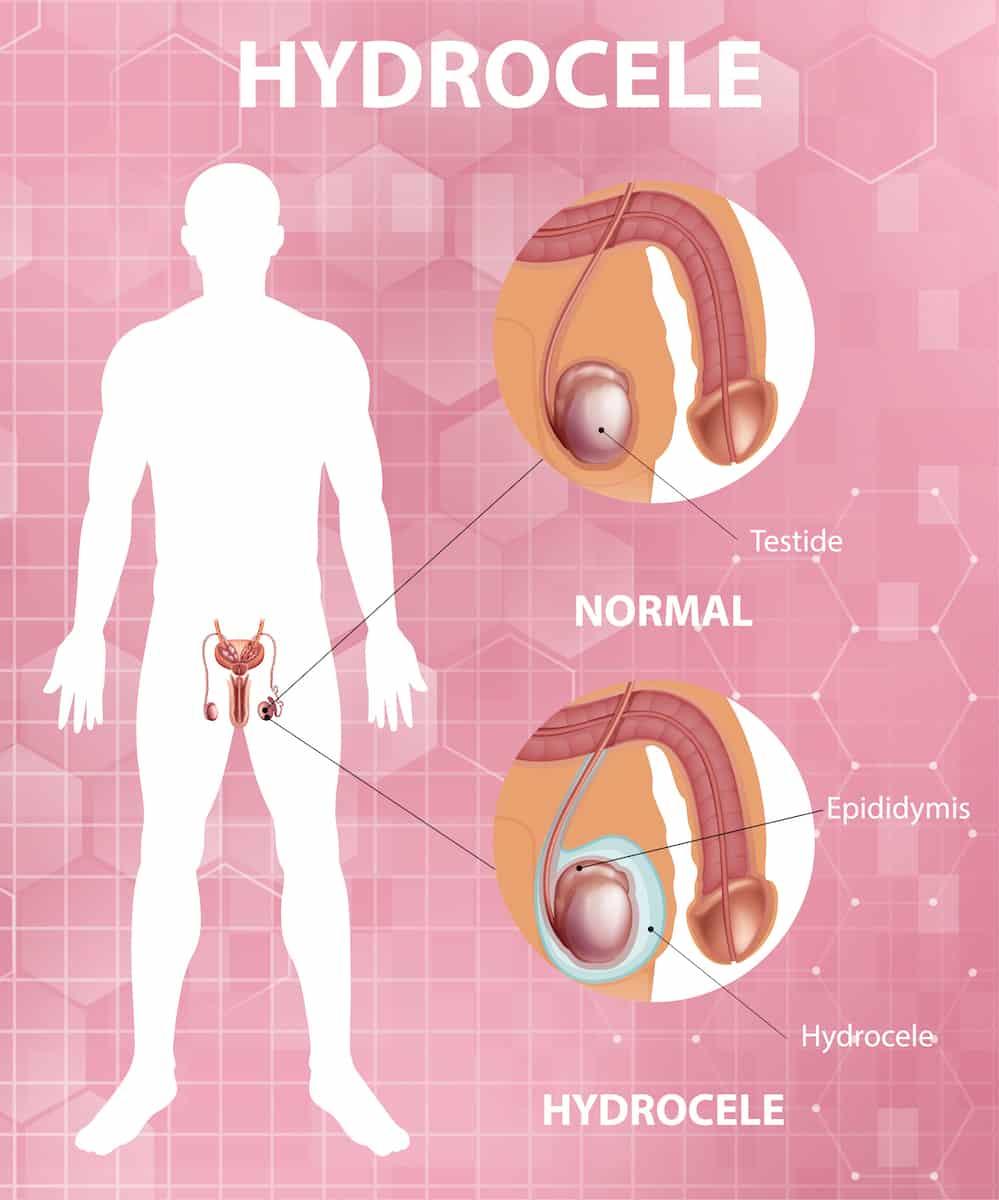 Hydrocele Topic