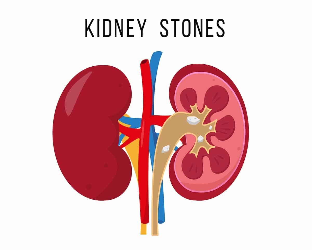 Role of the Potassium citrate in kidney stone treatment