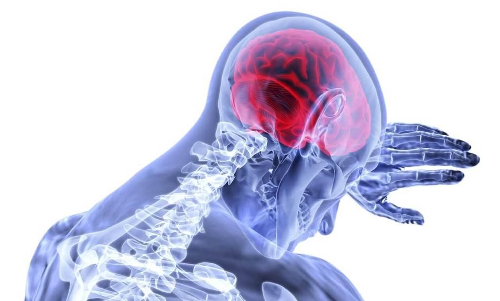 أعراض السكتة الدماغية لدى الرجال والنساء