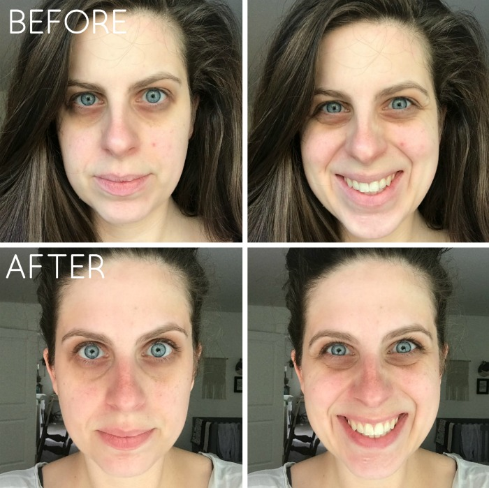 Rodan Fields before after