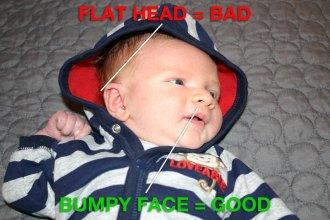 Popeye Has a Flat Head