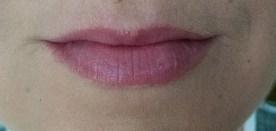Bare Lip